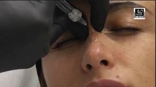 Эстетическая коррекция наружного носа.  Фрагмент вебинара