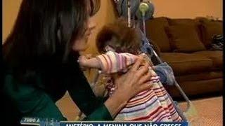 Tudo a Ver 15/07/2011: Nos EUA, menina de 17 anos tem corpo e mentalidade de um bebê