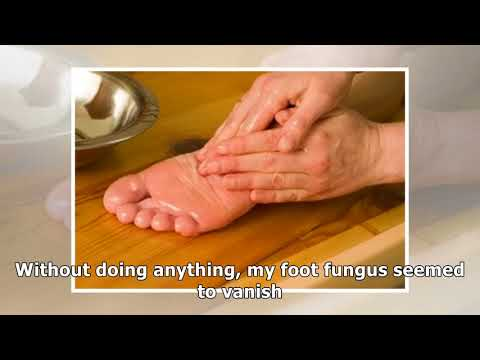 Coconut Oil Cures Foot Fungus