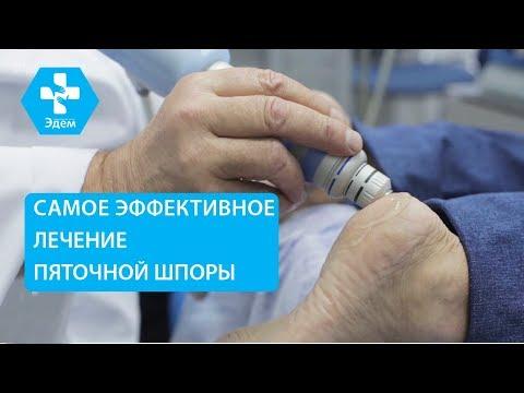 👣 Как лечить пяточную шпору методом ударно волновой терапии. Пяточная шпора как лечить. ЭДЕМ. 12+