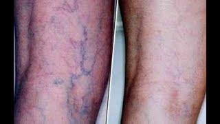 видео Выступают вены на ногах: причины и что делать — все о лечении сосудов