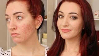 Deep Brown Smokey Eye GRWM! How To Cover Acne Scarring & Redness Thumbnail
