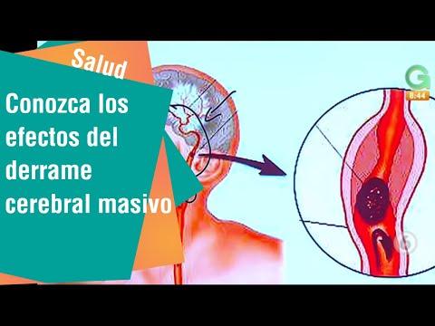 ¿Puede la presión arterial baja causarle un derrame cerebral?