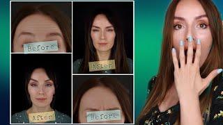 BOTOKS NASIL BİR SÜREÇ? | öncesi sonrası ve merak edilenler
