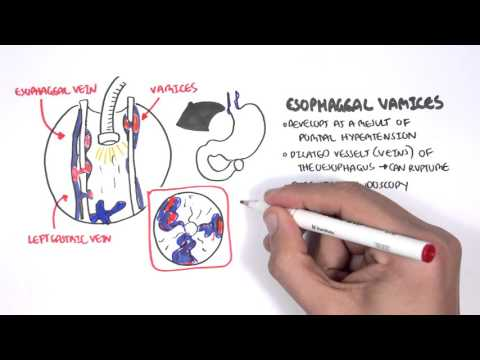 Upper GI Bleed Causes- Overview