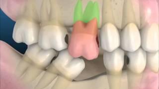 Consequências da Perda de um Dente