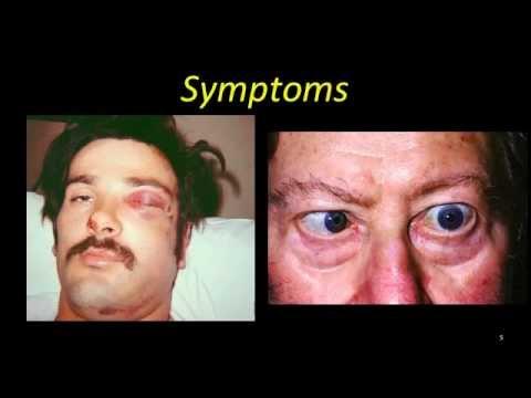 sinus cavernosus trombose