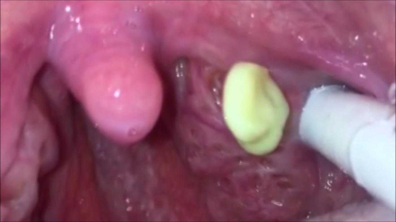 Worst Tonsil Stones - YouTube
