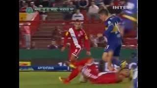 Аргентинский футболист лишился трех зубов, сделав по...