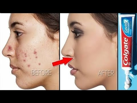 How To Remove Pimples Overnight । Acne Treatment । Remove Pimples Overnight with Toothpaste