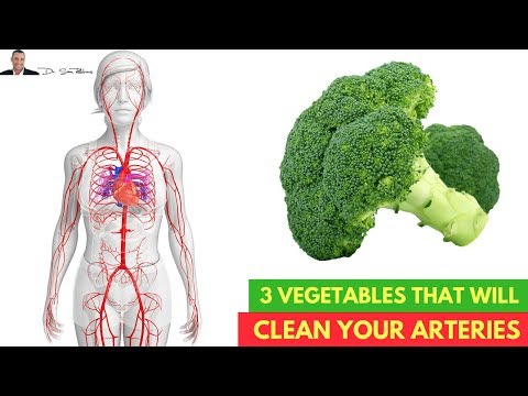 🌿3 Vegetables Clinically Proven To Cleanse Your Arteries💗 - by Dr Sam Robbins