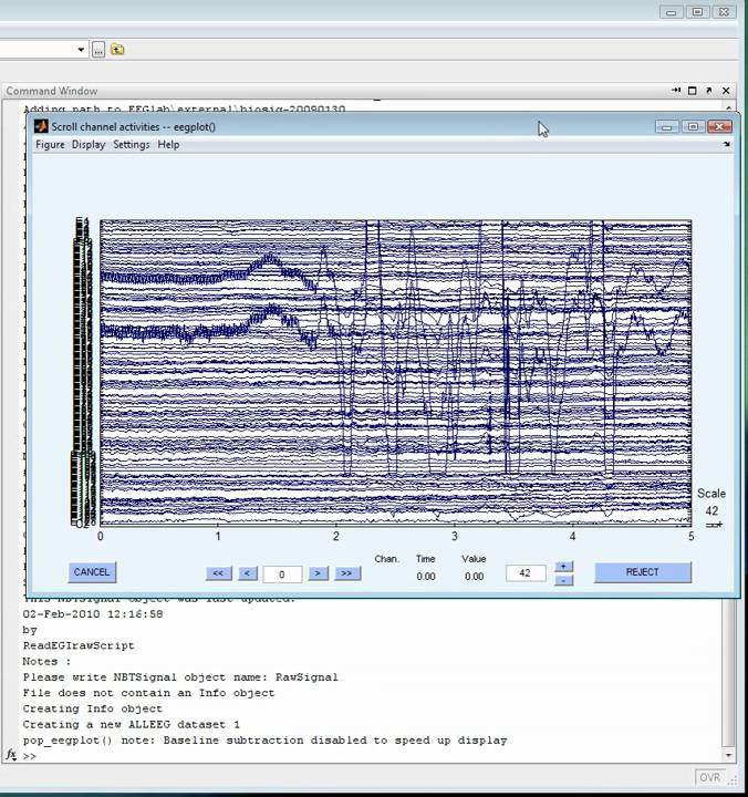 How to plot an EEG signal using EEGLAB and the NBT