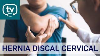 Hernia discal cervical, ¿qué es? ¿qué tratamientos existen?