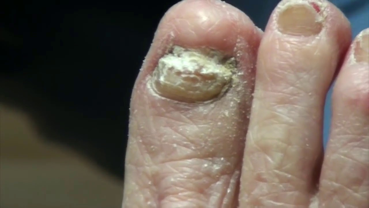Trimming Thick Toe Nails - YouTube