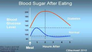 Diabetes 1: Glucose and Insulin