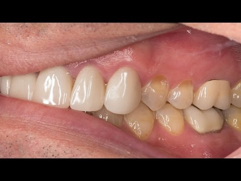 Chairside Live Episode 61: Fixing Poor Esthetics on a Pre-Existing Veneers Case