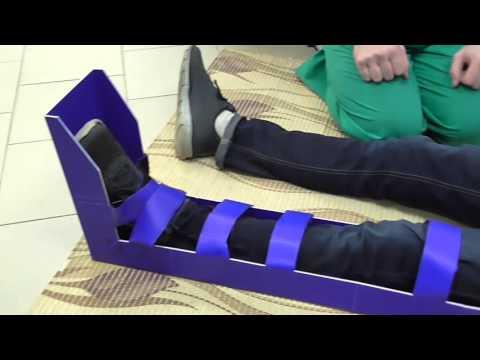 Как правильно накладывать шину при переломе