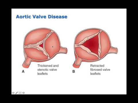 Chapter 19 Disorders of Cardiac Function BIO216
