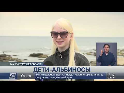 Единственная в Казахстане семья с двумя детьми-альбиносами живет в Актау
