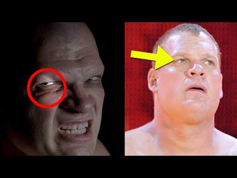 What Happened to Kane's Eye? - 5 Things WWE NEVER Explained About Kane!