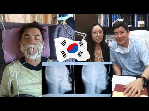 Результат ДО И ПОСЛЕ Операции в Корее / ПЛАСТИЧЕСКАЯ Операция В REGEN NikyMacAleen