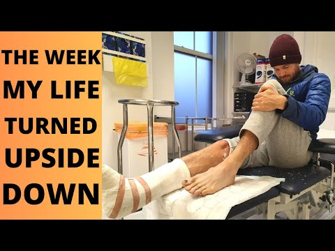 BROKEN ANKLE SURGERY // The Week My World Turned UPSIDE DOWN. Literally.