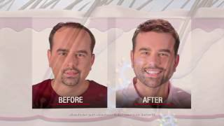 DHT Dihydrotestosterone & Hair Loss