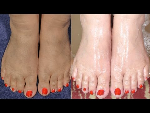 Thumbnail: Feet Whitening Pedicure At Home By Simple Beauty Secrets