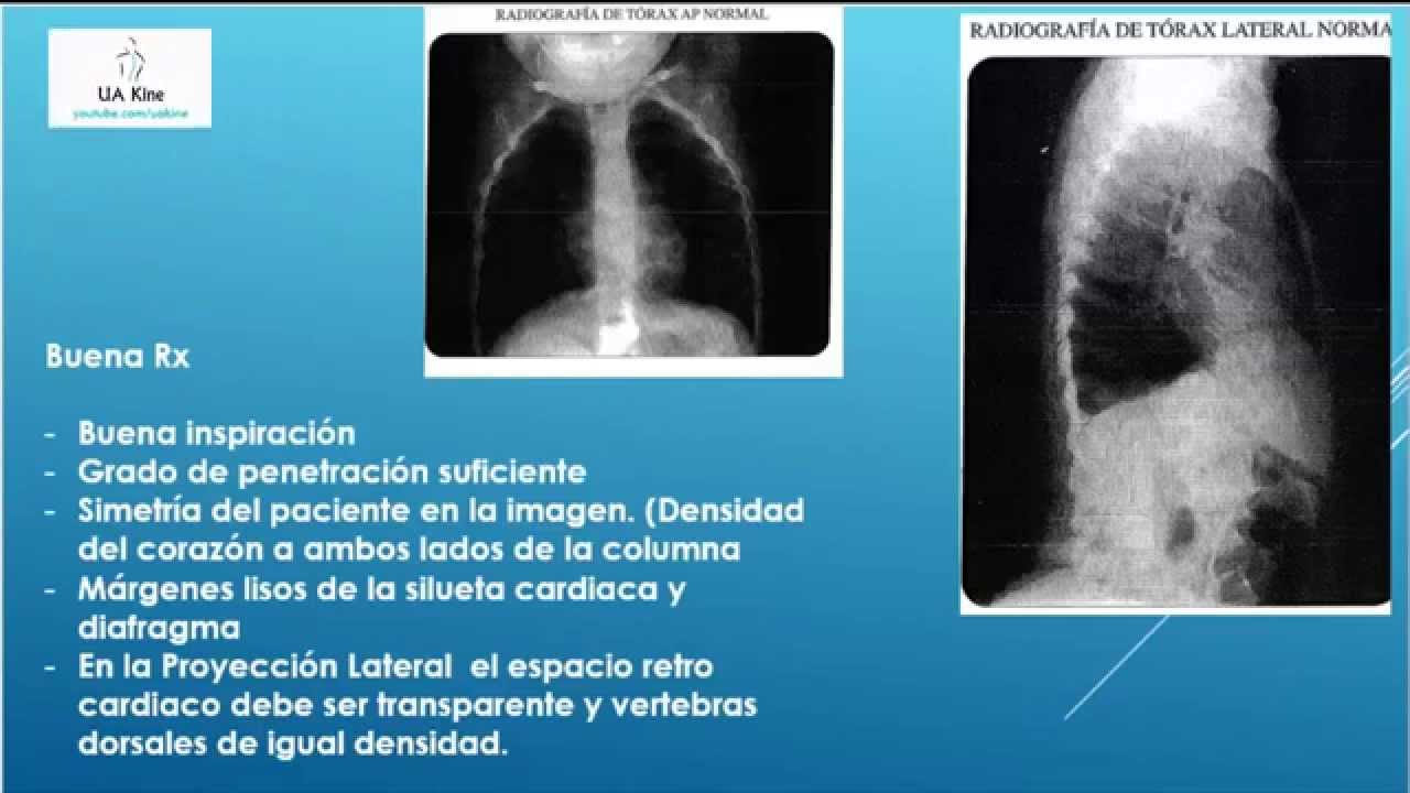 Radiografia de Torax - Uakine ( Aprende a interpretar una ...
