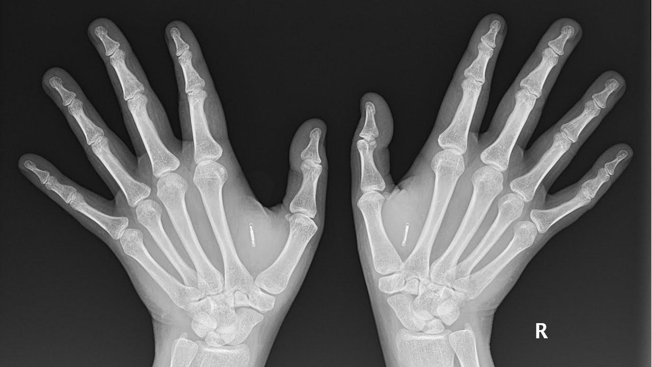 Microchip implants: Hundreds of Australians embracing 'super