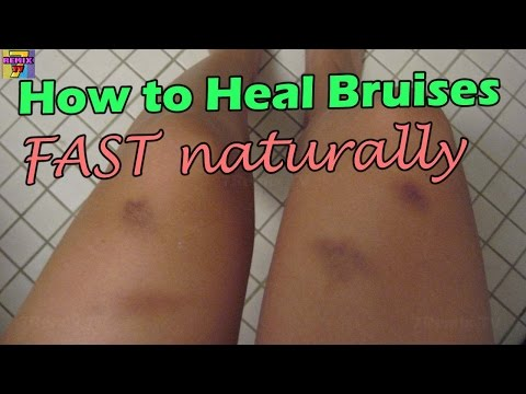 How To Remove Bruises Fast Naturally