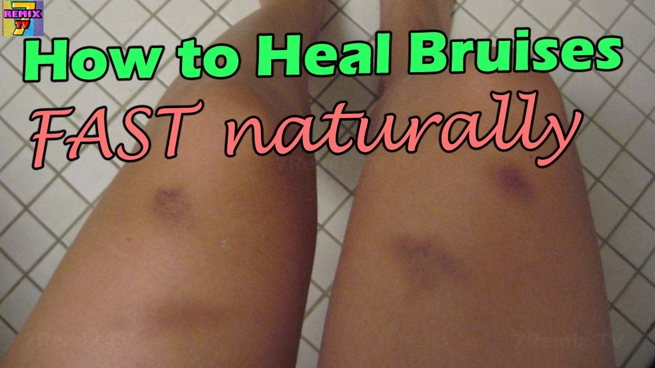 how to remove bruises fast naturally | how to heal bruised on bodies