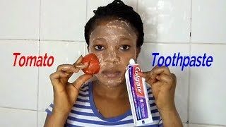 AM SHOCKED I APPLY TOOTHPASTE AND TOMATO ON MY FACE OVERNIGHT THE RESULT WILL AMAZE YOU