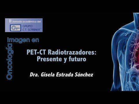 PET-CT radiotrazadores. Presente y futuro