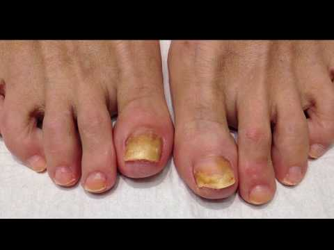 Get Real Nail Fungus Treatment | best fungal nail treatment
