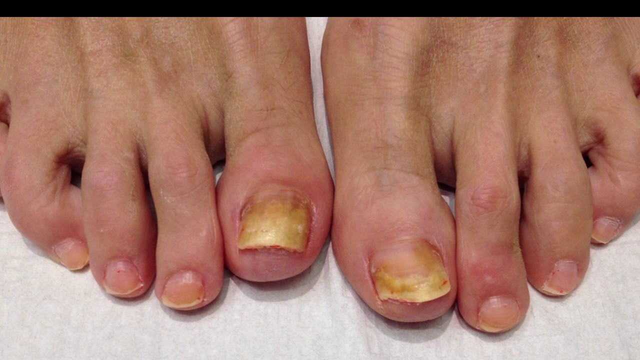 Get Real Nail Fungus Treatment | best fungal nail treatment - YouTube