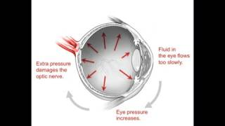 Animation: What Happens Inside Eyes with Glaucoma?