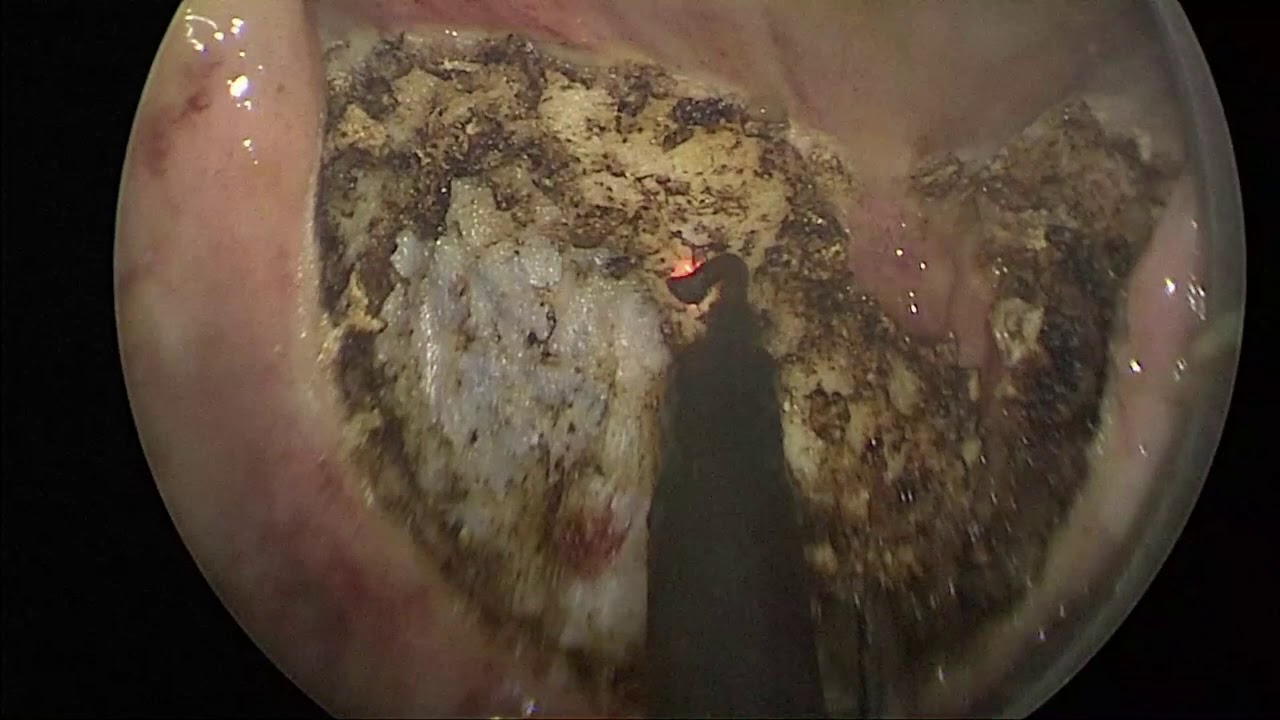 Cirurgia local para o câncer de reto após tratamento inicial por quimio e radioterapia