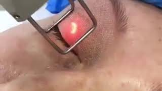 Лазерная блефаропластика