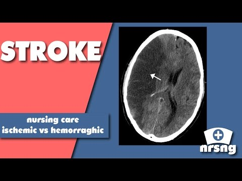 Stroke Nursing Care