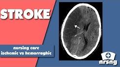 Stroke Nursing Care