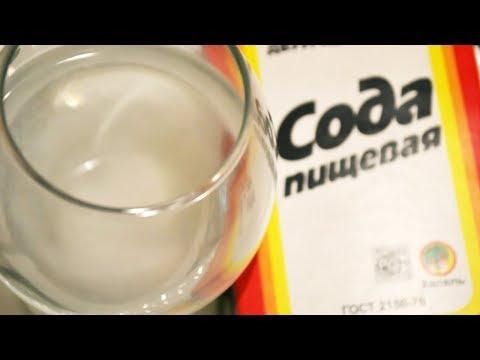 ✅Лечение Молочницы в домашних условиях