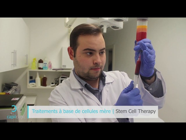 Stem cell hair treatment -  Hair transplant in Turkey - Capilclinic