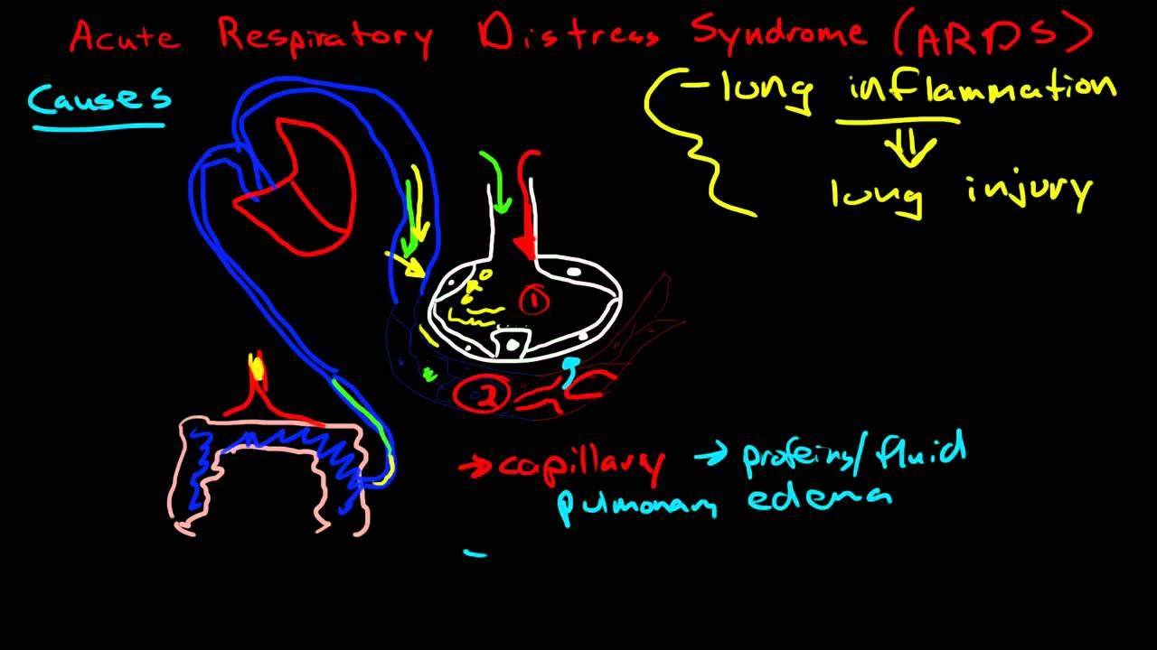 acute resiratory distress syndrome Acute respiratory distress syndrome definition is - respiratory failure of sudden onset in adults or children that follows injury to the endothelium of the lung (as in sepsis, chest trauma, massive blood transfusion, aspiration of the gastric contents, or pneumonia) and results in the accumulation of protein-rich fluid and the collapse of.