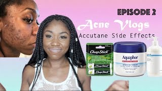 Acne Vlog| Side Effects of Accutane + The Purge Week 2 | Shanese Danae