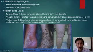 Ini Buktinya!! Penyebab Sakit Gigi Berlubang Bukan Ulat! #tanyadoktergigimuda.
