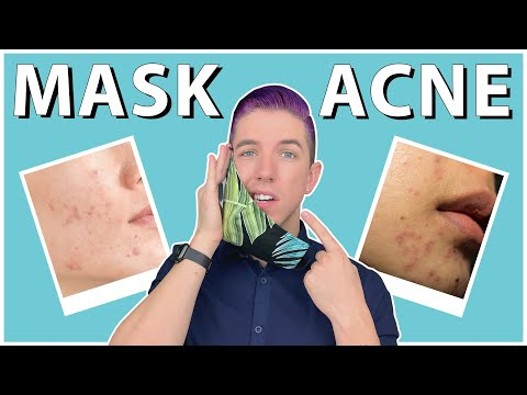 """How to Prevent & Get Rid of """"Maskne"""" - YouTube"""