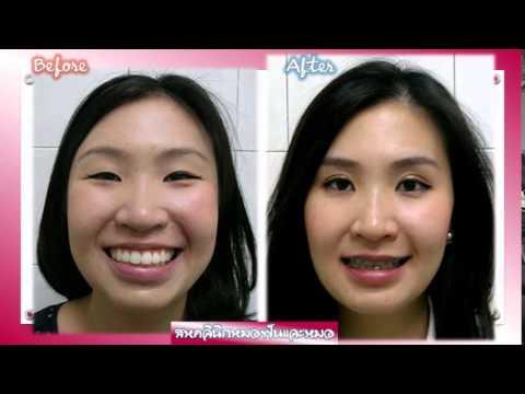 จัดฟัน จัดโครงสร้างใบหน้า สหคลินิกหมอฟันและหมอ เคสหน้ากลม คางสั้น