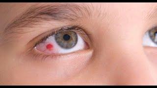 9 Signes que vous avez un problème aux yeux