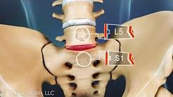 hqdefault - Back Pain L5 S1 Area